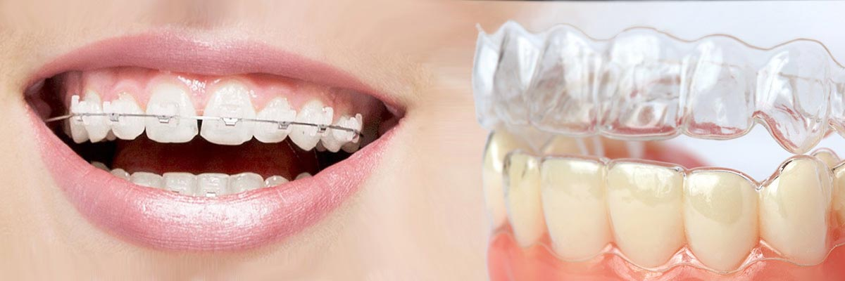 Marietta Which is Better Invisalign or Braces